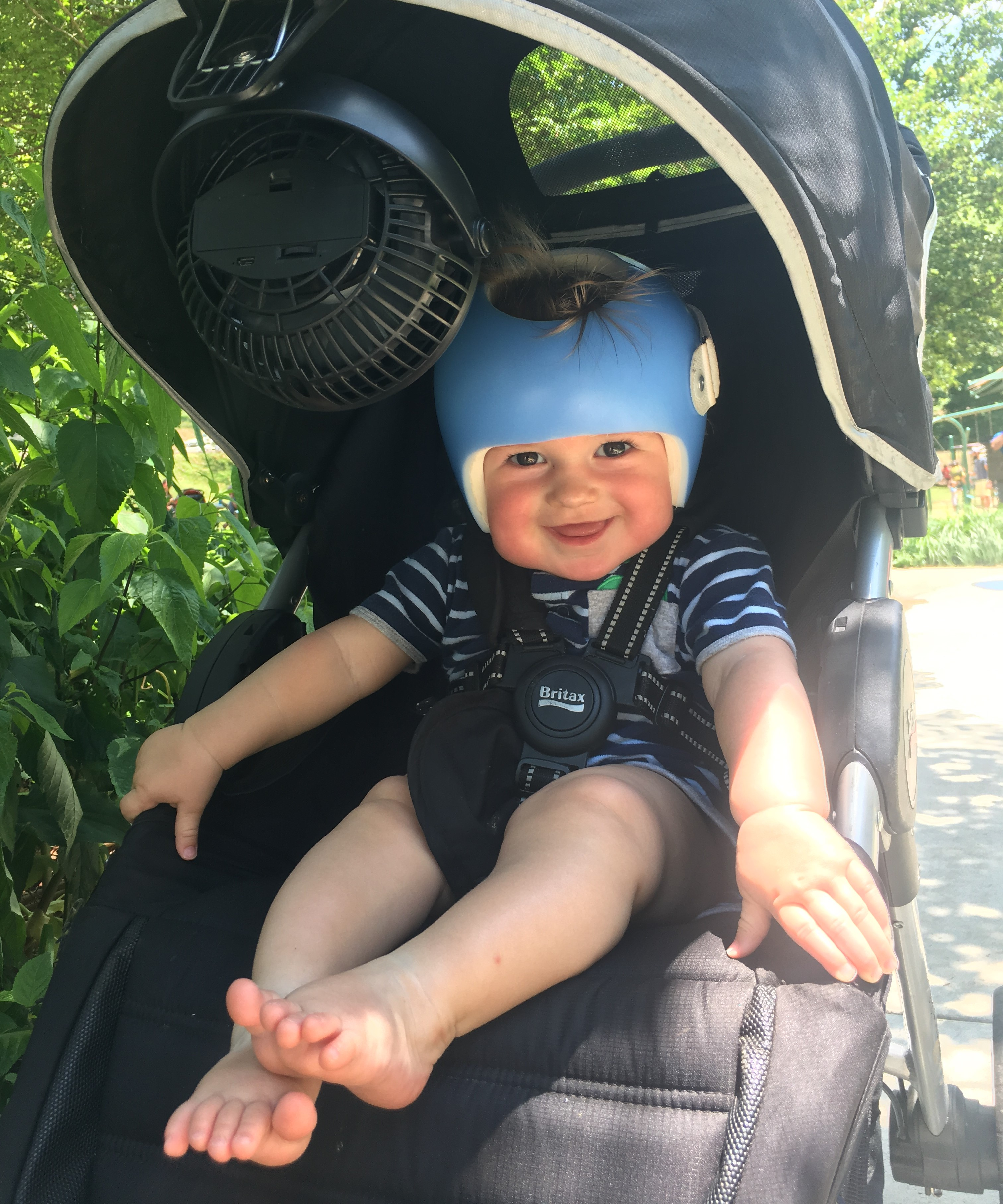 Plagiocephaly and a baby helmet fan